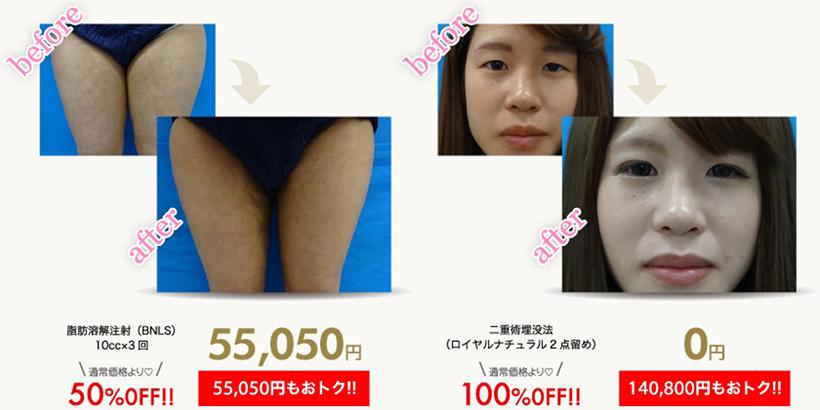 たった10分で憧れのクッキリ二重に! 症例数「150,000件」以上! インフルエンサーたちから大好評の美容外科を調査してみた!